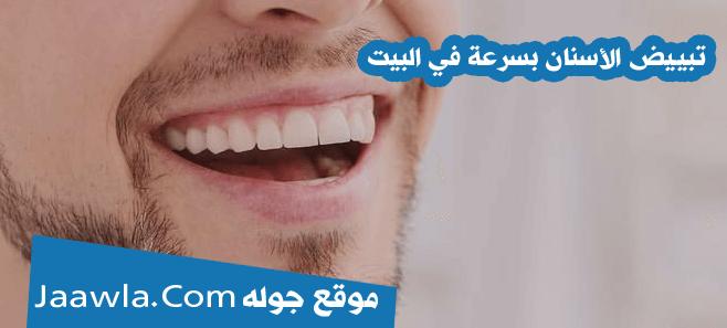 تبييض الأسنان بسرعة في البيت