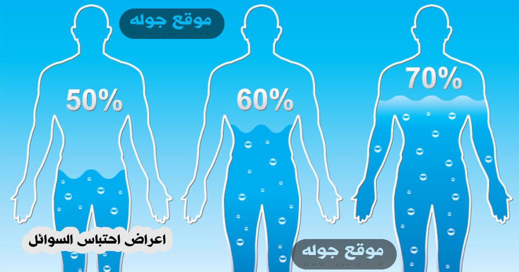 اعراض احتباس السوائل - كيف اعرف اذا عندي احتباس سوائل - احتباس السوائل